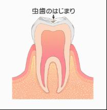 C0:初期虫歯